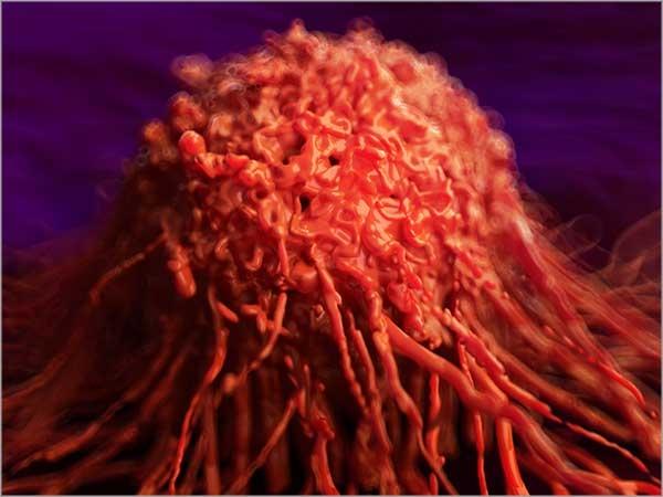 Gynaecological Cancer treatment in chennai