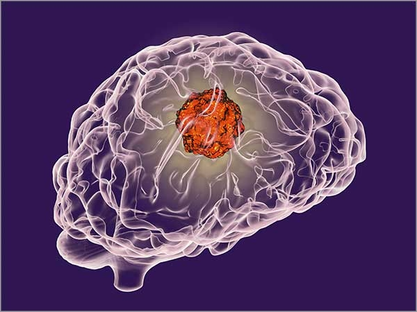 brain cancer treatment chennai