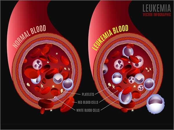 leukemias in chennai