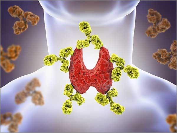 hypothyroidism treatment chennai