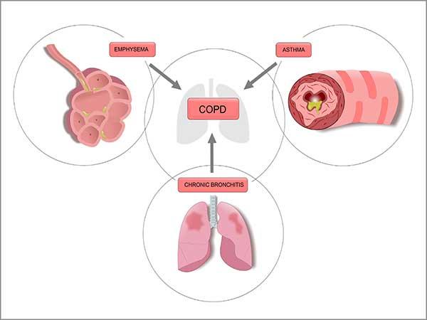 asthma symptoms in chennai